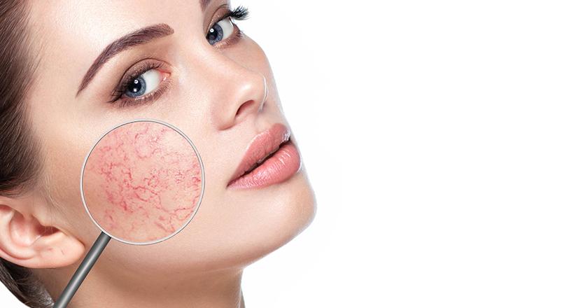 esztétikai kezelés az arc vékonyításáhoza